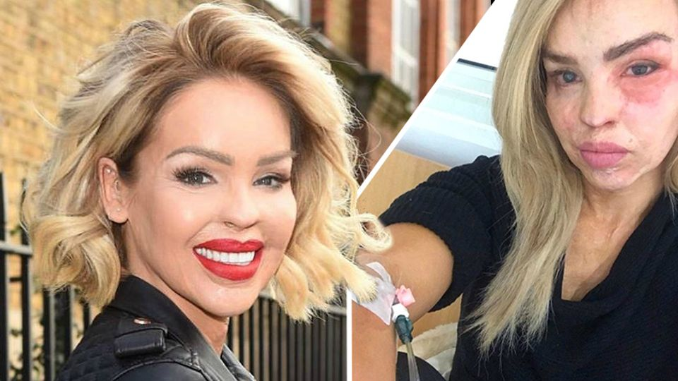 Katie Piper In Hospital On Her Daughter S Birthday For Severe Eye Infection Closer