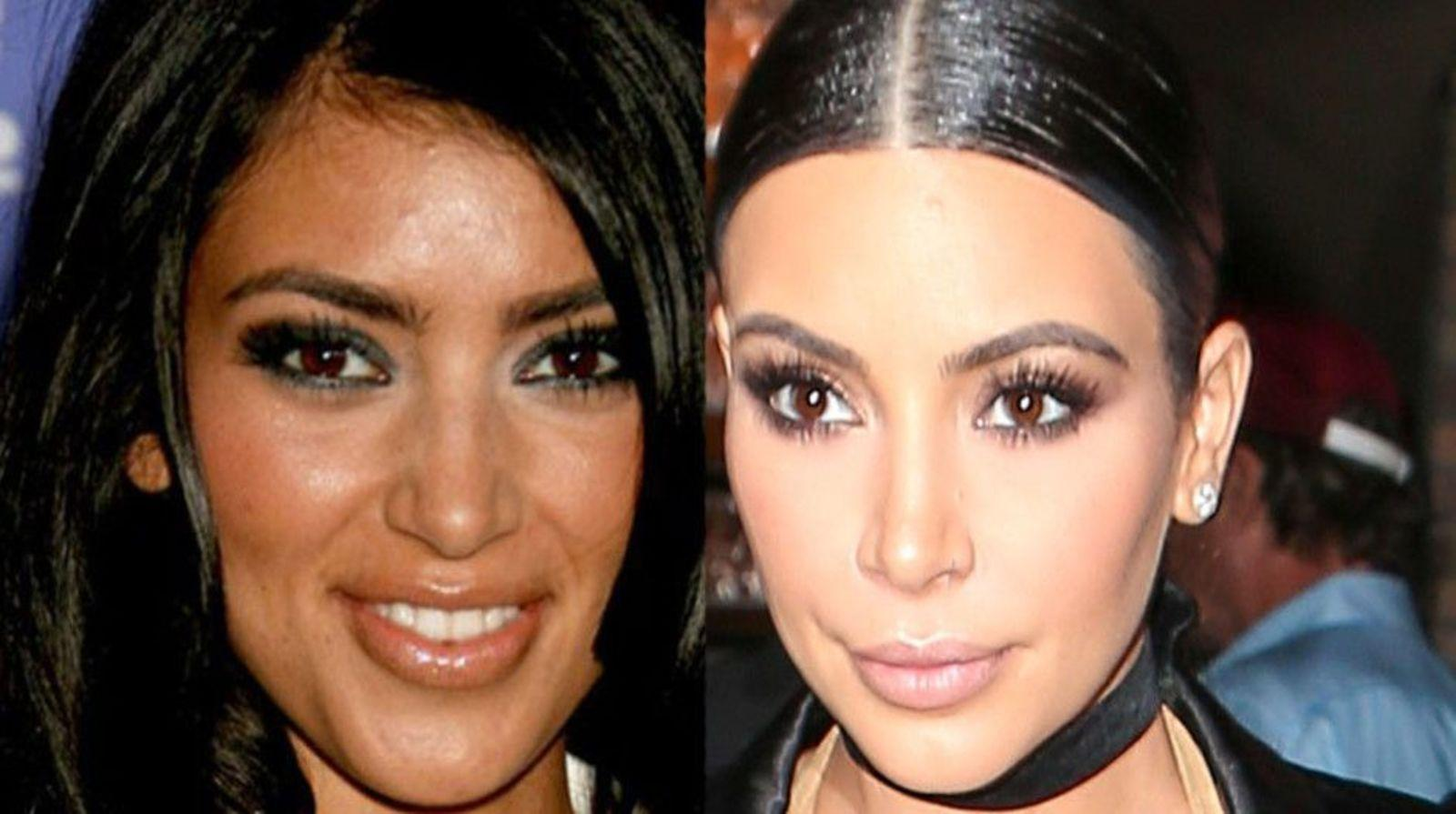 kardashians before and after photos
