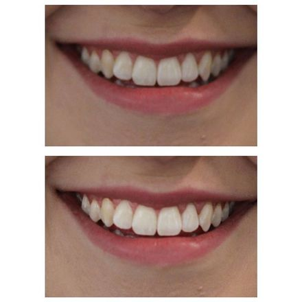 Review Does Charcoal Teeth Whitening Toothpaste Actually Work Grazia