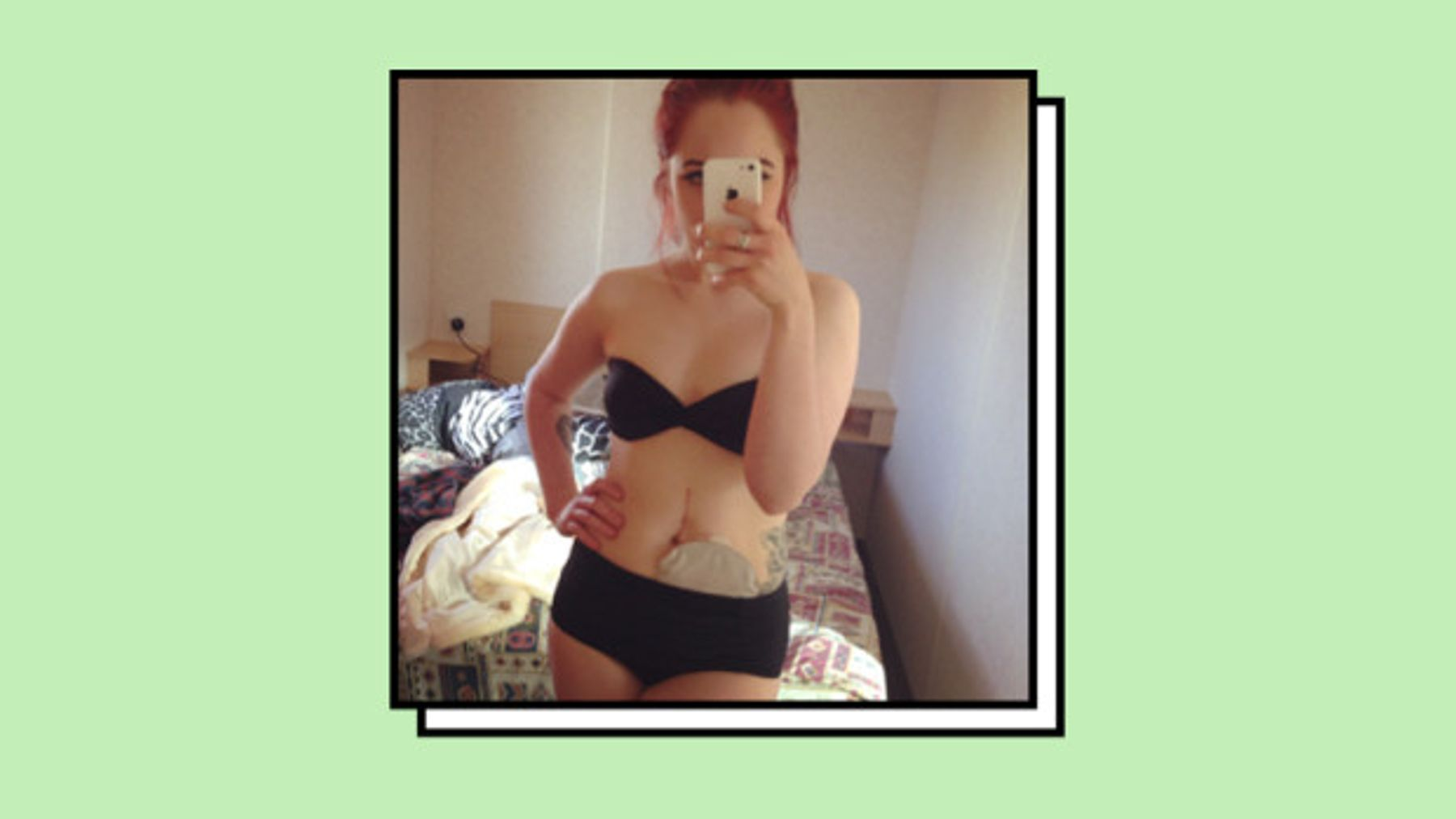 595c4fd1f2 Following emergency bowel surgery six months ago, 20-year-old Hattie was  fitted with an ileostomy bag, which has to be emptied several times a day.