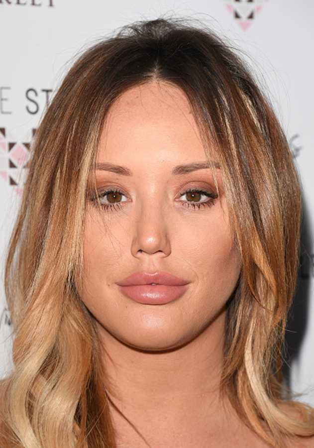 Celebrities with lip fillers: A transformation gallery