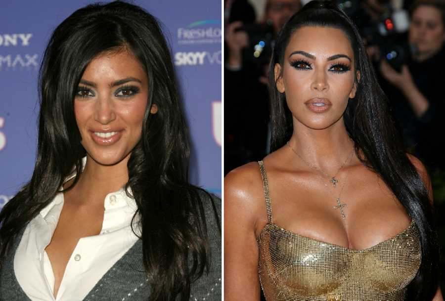 From Katie Price to Kim Kardashian: celebs who look SHOCKINGLY different after plastic surgery