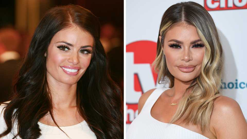 40fbe3b05 TOWIE: surgeon's view on Chloe Sims' drastically different face after she  blasts filler claims | Closer