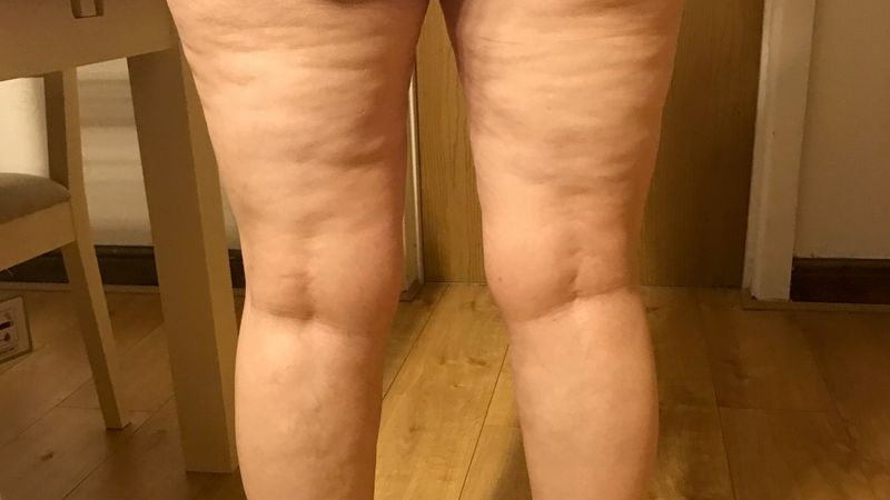 'My legs keep growing': Bristol nurse comes to terms with life-changing lipoedema