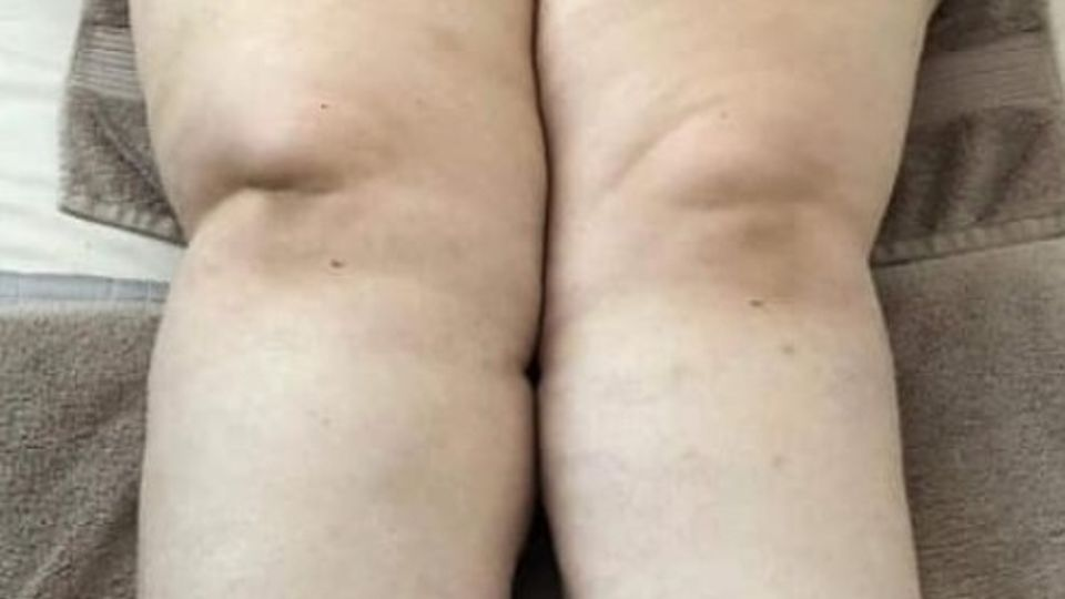 Lipoedema: Sign our petition for fairer treatment and funding
