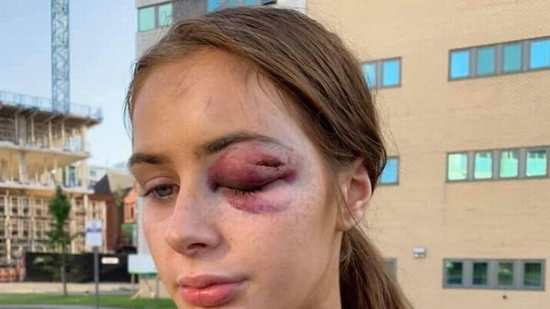 Gabrielle Walsh Was Punched In The Face For Rejecting A Man