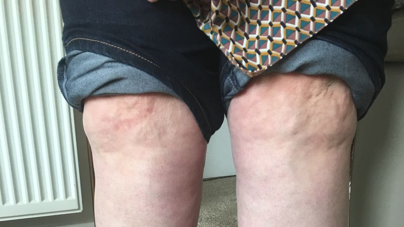 Dundee woman to go abroad for surgery in bid to cure lipoedema