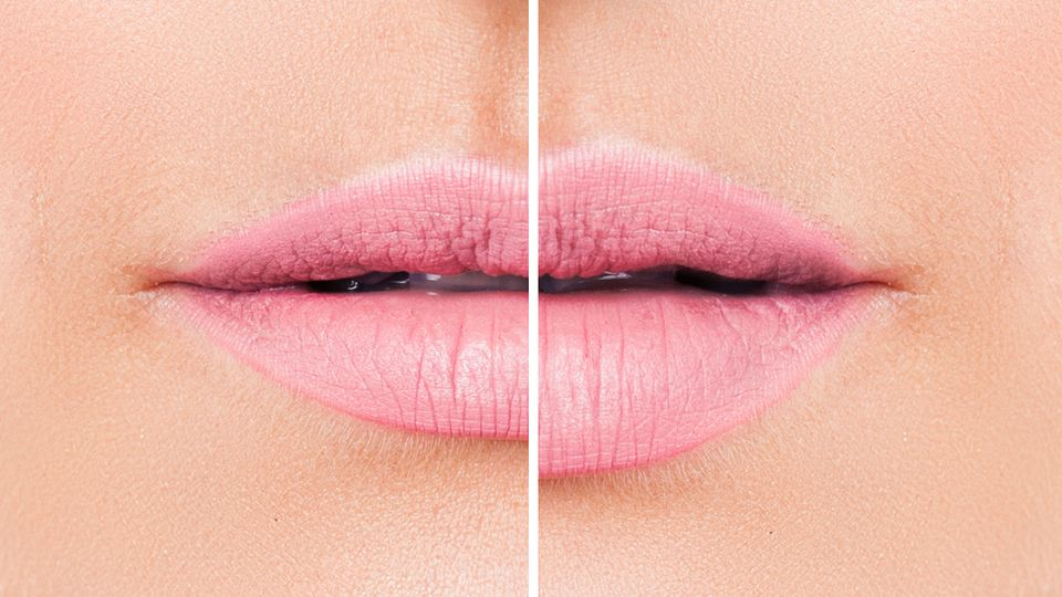 Lip fillers: How long do they last? How much do they cost? And everything else you need to know