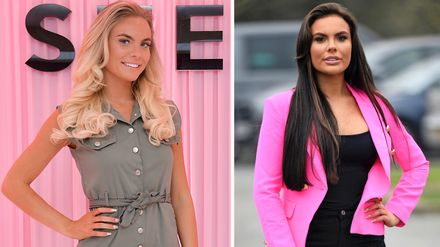 TOWIE: the converting faces of the forged, dermalfillerbeforeandafter